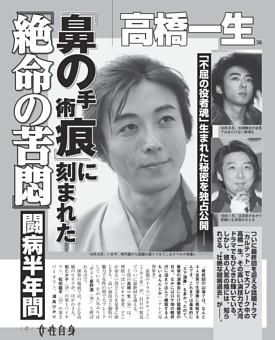 高橋一生 闘病半年間 「鼻の手術痕」に刻まれた「絶命の苦悶」 「不屈の役者魂」生まれた秘密を独占公開—